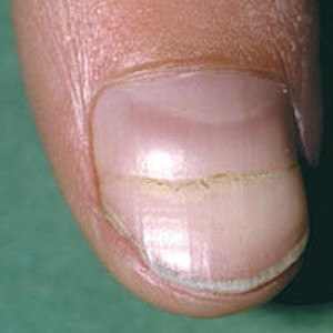 Cracking & Splitting Nails... | Healthypages Forums