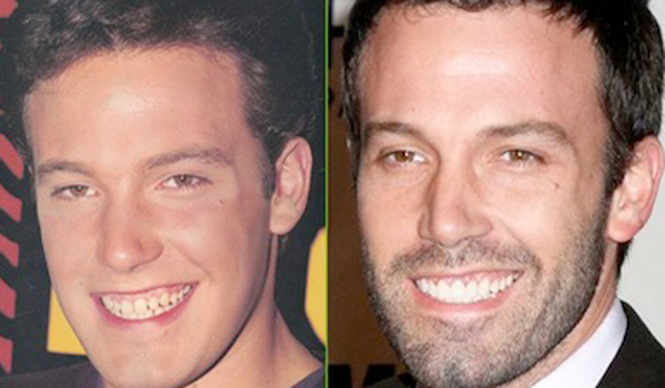 Ben-Affleck-dientes-antes-y-despues