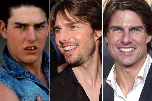 tom-cruise-carillas