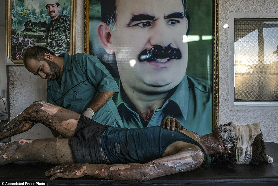 "In this image released by World Press Photo titled ""IS Fighter Treated at Kurdish Hospital"" by photographer Mauricio Lima for The New York Times which won a first prize in the General News singles category shows a doctor rubbing ointment on the burns of a 16-year-old Islamic State fighter named Jacob in front of a poster of Abdullah Ocalan, the jailed leader of the Kurdistan Workers' Party, at a Y.P.G. hospital compound on the outskirts of Hasaka, Syria, August 1, 2015. (Mauricio Lima/The New YorkTimes, World Press Photo via AP)"